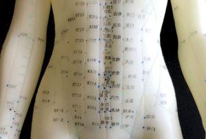 Acupuncture in Chinese Medicine